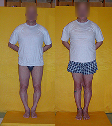 Patient before and after bow legs correction