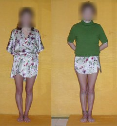 Bow legs correction. Before and after operation.