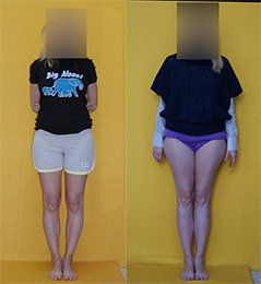 Limb lengthening by 6 cm, combined with bow legs correction. Before and after.