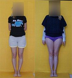 До и после оперативного удлинения ног, совмещенного с коррекцией деформации)